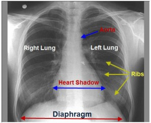Interpreting an X-ray