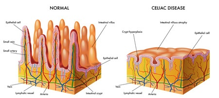 The impact of coeliac disease on the lining of the small intestine