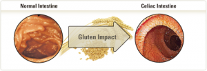 Image of the small intestine before and after coeliac disease