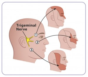 The various parts of the face that can be affected if the Trigeminal nerve is disturbed