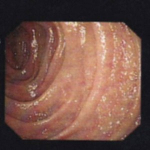 Figure 2: image of my duodenum