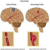 stroke types[1]