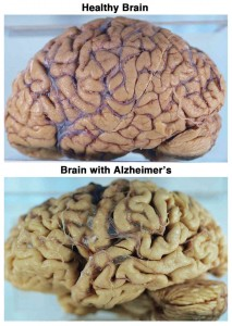 differences between the brains with and without alzheimer's