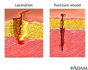 deep puncture wound and laceration