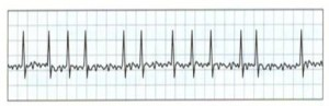 ECG of Atrial Fibrillation showing tiny waves in between heartbeats.