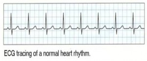 Normal ECG Reading