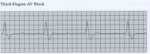 Heart Block Third Degree
