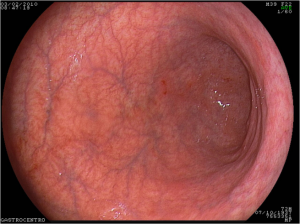 Atrophic gastritis- damage to stomach lining