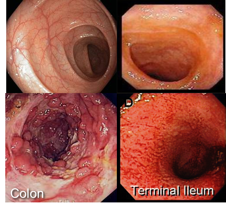 Crohn S Disease Colonoscopy Pictures To Pin On Pinterest