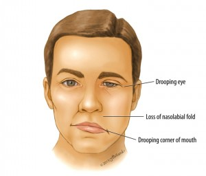 what is bell's palsy caused from