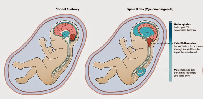 Neural Tube Defects- Spina Bifida: | The Ponderings of an ...
