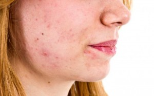 a-woman-with-acne