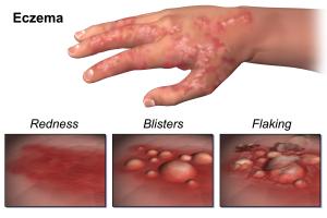 eczema-symptoms