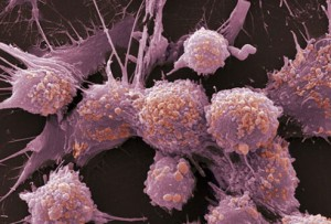 prostate-cancer-s20-photo-of-prostate-cancer-cells