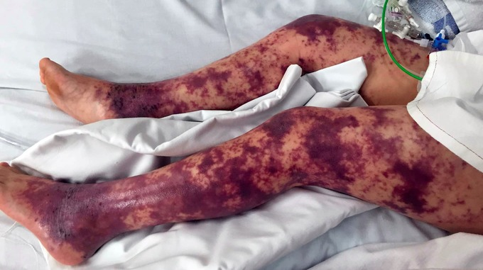meningitis and septicaemia why you should act fast tom 39 s medical blog. Black Bedroom Furniture Sets. Home Design Ideas