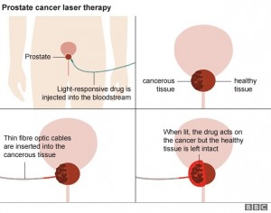 _93027653_prostate_cancer_laser_therapy_624